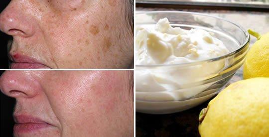 Come eliminare le macchie della pelle per sempre con limone e yogurt