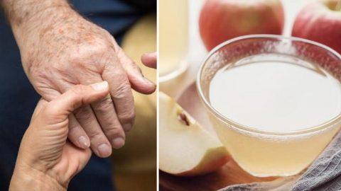 Rimuovi le macchie dalle mani con questo ingrediente: sorprendente