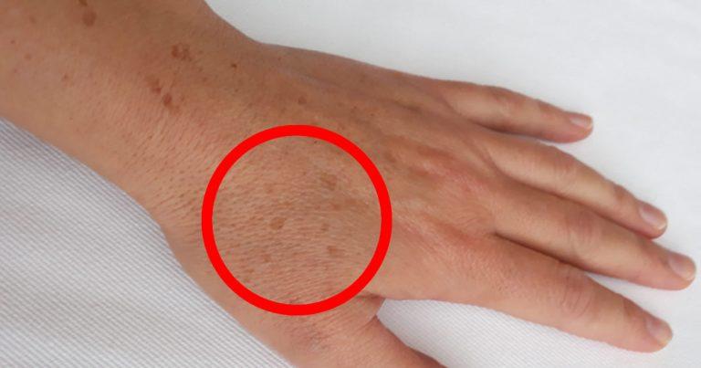 Come attenuare le macchie scure della pelle delle mani con rimedi naturali