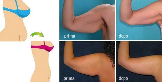 2 trucchi per eliminare il grasso addominale e la pelle flaccida sotto le braccia